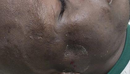 官方:穆谢奎颧骨骨折,伤愈时间未知